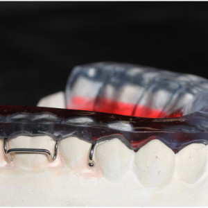 coussin_occlusal